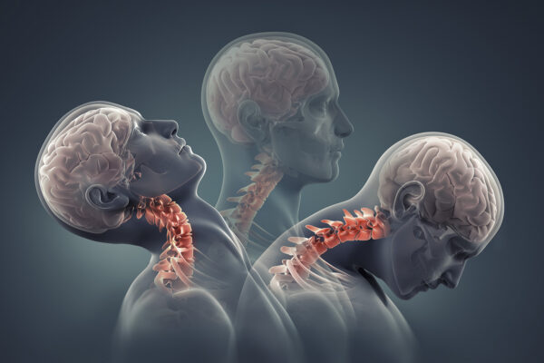 PHYSIOTHERAPY TREATMENT FOR NECK PAIN